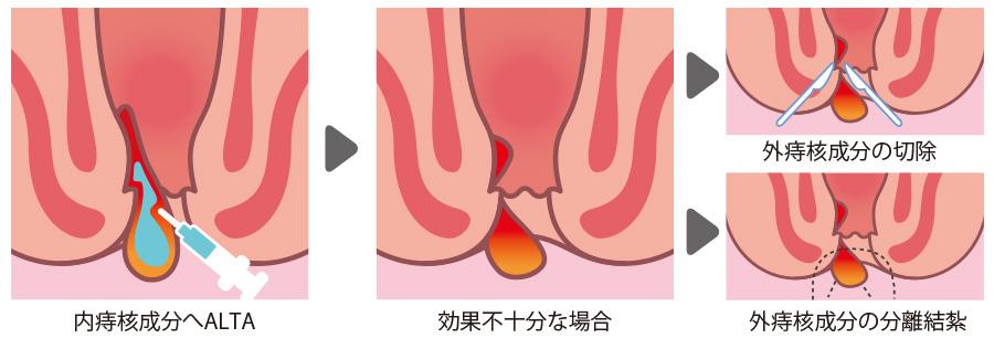 マイクリニック大久保のALTA療法+分離結紮術