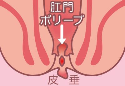 裂肛・肛門ポリープ・皮垂イラスト
