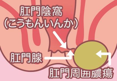 マイクリニック大久保肛門腺・肛門周囲膿瘍のイラスト