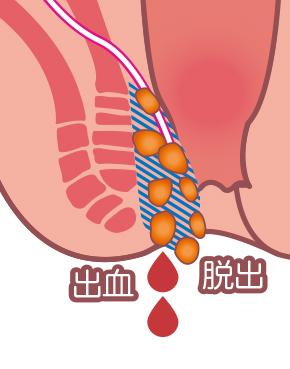 マイクリニック大久保の内痔核のイラスト