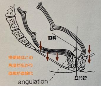 マイクリニック大久保名古屋 前傾姿勢で直腸を直線化